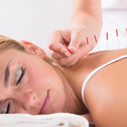 Agopuntura: cos'è e quando rivolgersi all'agopuntore