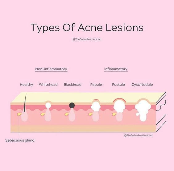 types-of-acne-leisons-cataldi-com-brufolo