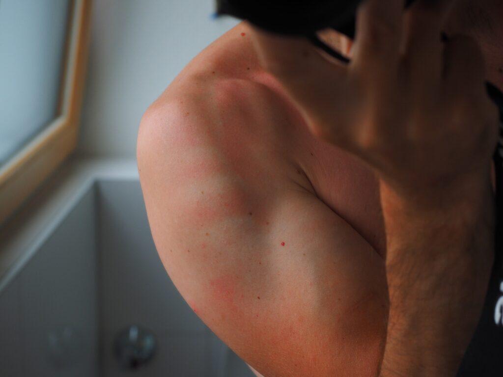 Benefici dell'olio essenziale di mirra sulle ferite