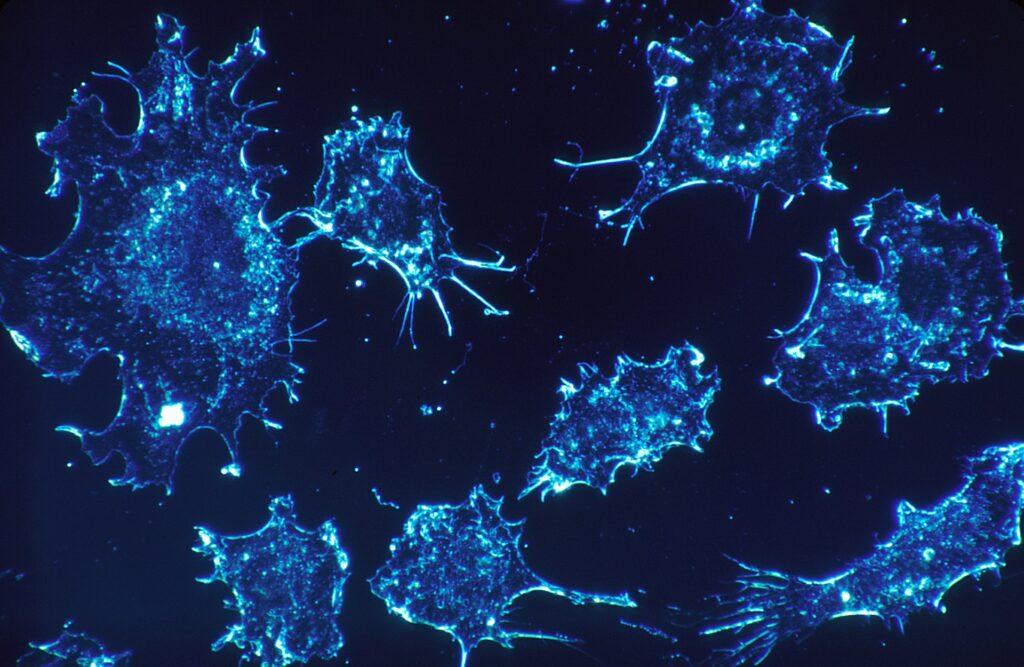 Benefici dell'olio essenziale di mirra sulle cellule tumorali